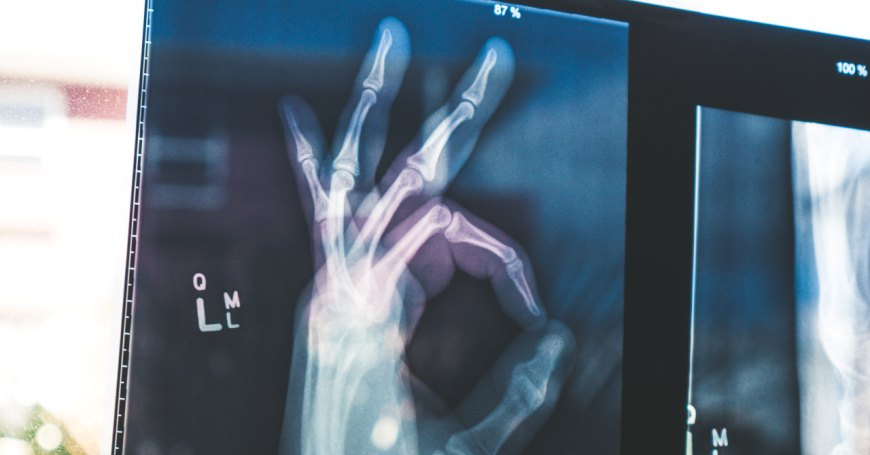X Ray of a hand