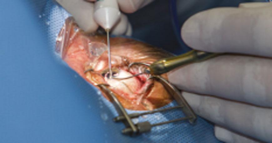 Process of eyeball implants
